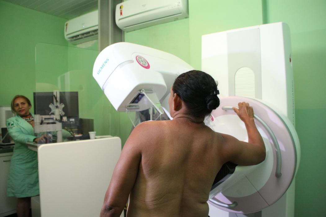 MAMOGRAFIA deve ser realizada anualmente em mulheres acima de 40 anos, mesmo sem sintomas (Foto: Mauri Melo)