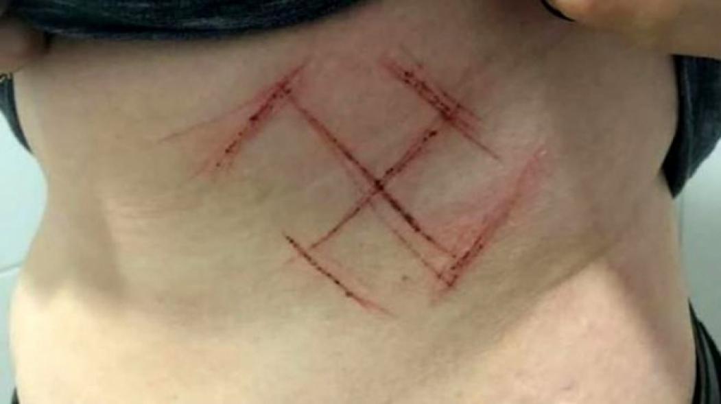 Inclinação demonstra se tratar da suástica nazista, não do Manji budista