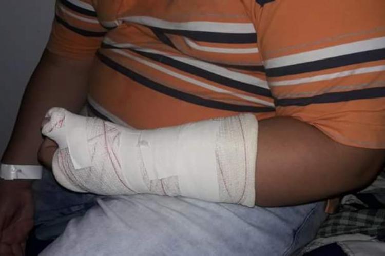 Imagens obtidas pelo O POVO Online mostram o resultado das agressões