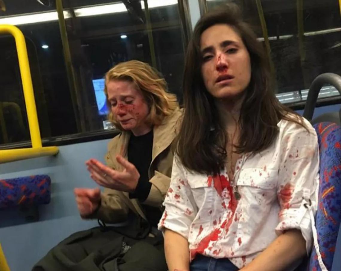 Casal de mulheres foi agredido em Londres.