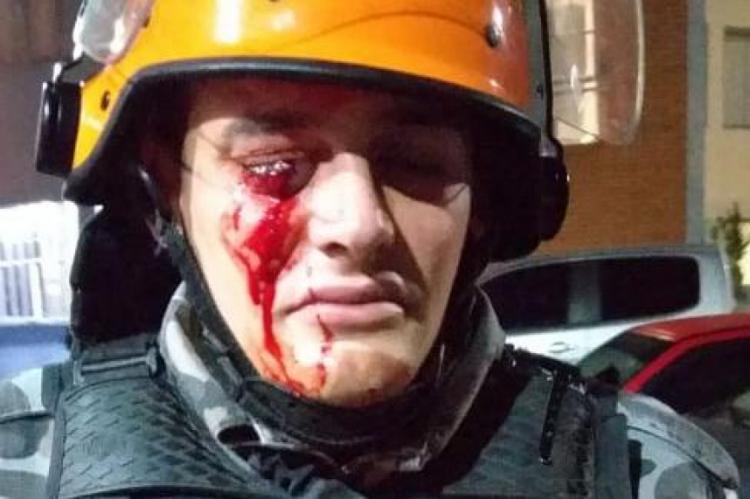 Além do policial ferido no olho direito, três manifestantes também se feriram.