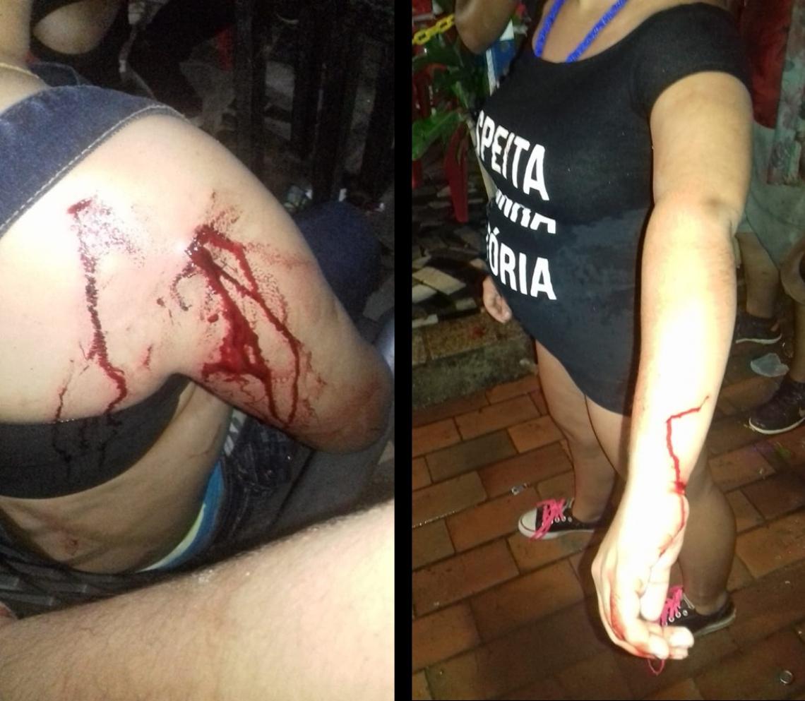 O casal foi atingido por um objeto de vidro - presumidamente um copo