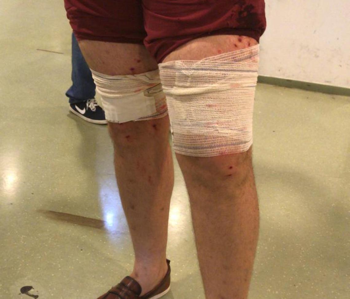 O servidor público de 41 anos teve os membros inferiores atingidos por disparo de munição de impacto controlado.