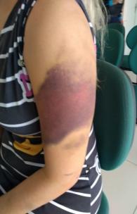 Hematoma no braço da mulher grávida agredida em Limoeiro do Norte. Marido agressor foi preso em flagrante