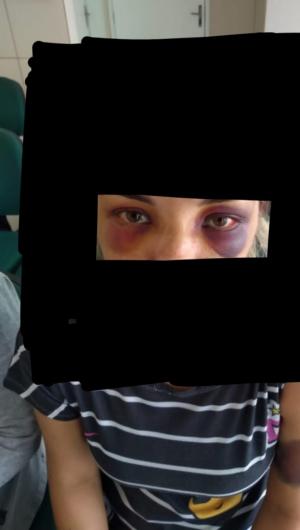 Foto feita na delegacia (com interferência gráfica) mostra graves hematomas no rosto da mulher agredida em Limoeiro do Norte