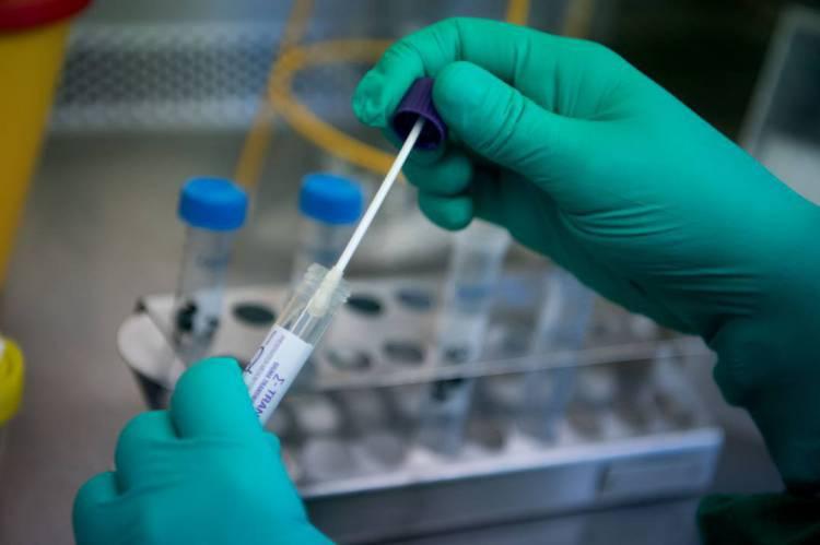 Número de infectados por coronavírus pode ser quinze vezes maior no Brasil, aponta estudo