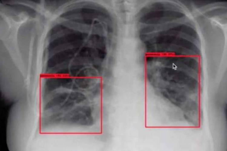 Inteligência artificial pode ser usada para análise radiológica ou de exames laboratoriais (Foto: Divulgação)