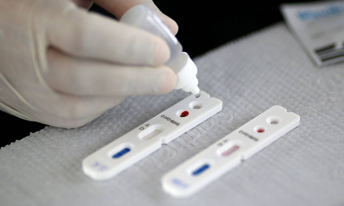 Profissional de saúde realiza teste para o novo coronavírus em Brasília.21/04/2020.REUTERS/Ueslei Marcelino (Foto: REUTERS/Ueslei Marcelino/Direitos reservados)