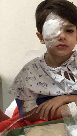 Bento após sofrer o acidente com o produto que queimou quase que inteiramente a córnea de seu olho direito (Foto: Reprodução)