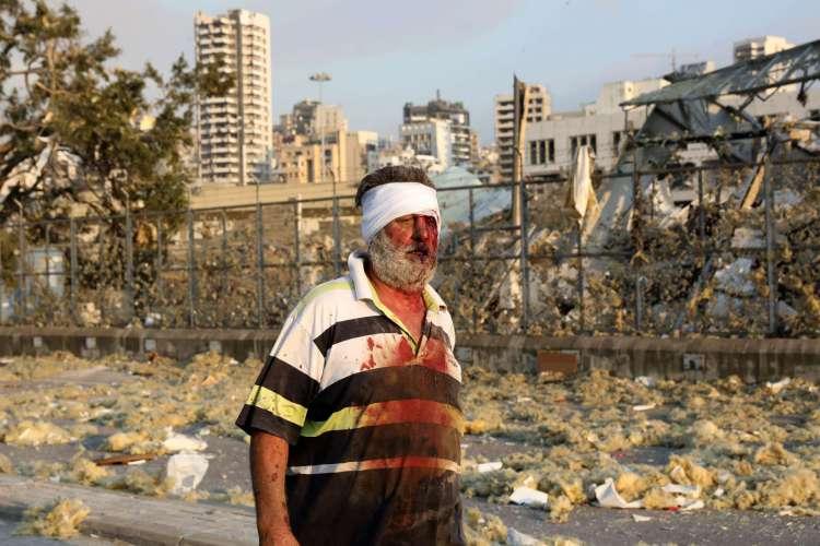 Explosão em Beirute, capital do Líbano, deixa dezenas de mortos e centenas de feridos nesta terça-feira, 4  (Foto: Anwar Amro/AFP)