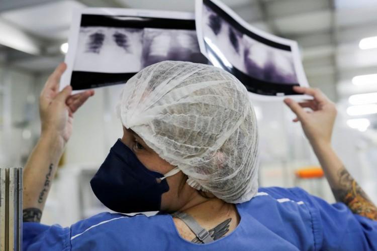A doutora Luciana Souza compara duas radiografias de tórax diferentes de um paciente enquanto conversa com um colega de um hospital de campanha criado para tratar pacientes que sofrem da doença de coronavírus (COVID-19) em Guarulhos, São Paulo (Foto: REUTERS / Amanda Perobelli)