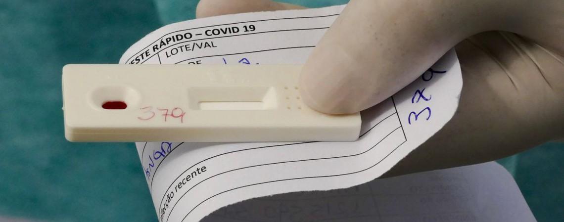São 4260 casos a mais do que os números registrados ontem, 4 de maio (Foto: Leopoldo Silva/Agência Senado)