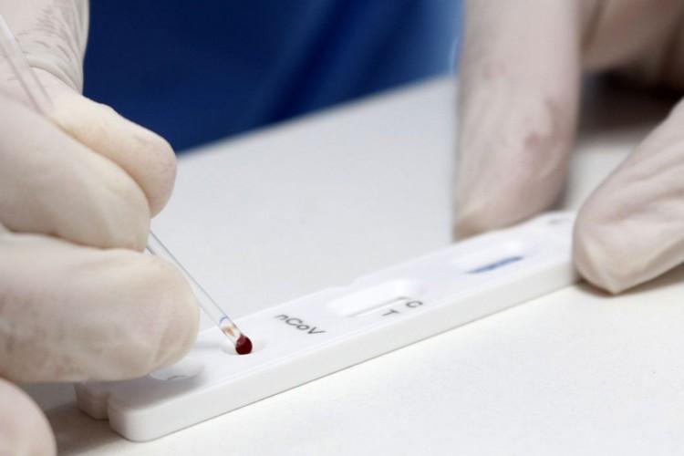 Brasil soma 6.781.799 casos positivos de Covid-19, enquanto o total de mortes por conta da pandemia do novo coronavírus chegou a 179.765 nesta quinta-feira, 10 (Foto: Mauricio Vieira/Secom-SC)