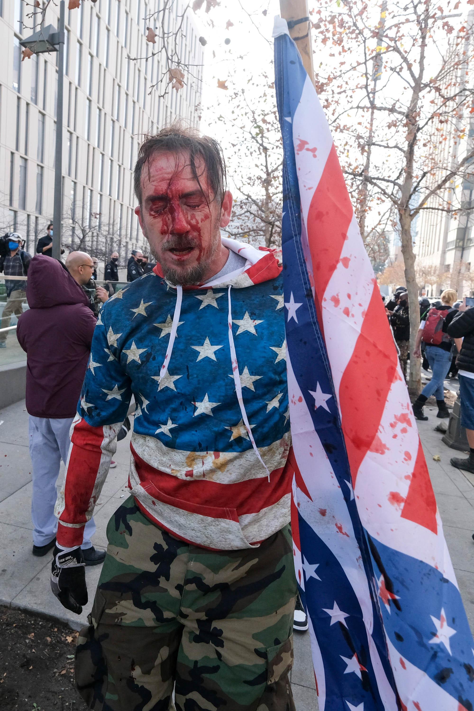 (Foto: RINGO CHIU / AFP)Um manifestante é visto coberto de sangue depois que uma briga estourou durante um protesto em apoio ao presidente dos EUA, Donald Trump, em Los Angeles em 6 de janeiro de 2021. - Os apoiadores de Trump, alimentados por suas alegações espúrias de fraude eleitoral, estão protestando contra a certificação esperada de Vitória de Joe Biden na Casa Branca pelo Congresso dos EUA em 6 de janeiro. (Foto: RINGO CHIU / AFP)