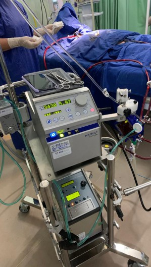 A ECMO já foi utilizada em pacientes da rede pública e privada em Fortaleza. (Foto:  Instituto Citycor)