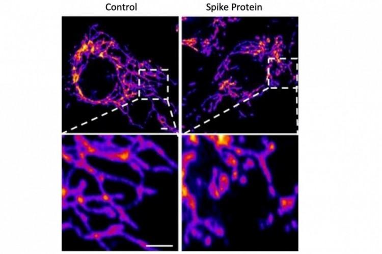 O vírus Sars-CoV-2, a esquerda, e o pseudovírus criado em laboratório, a direita.  (Foto: Salk Institute)