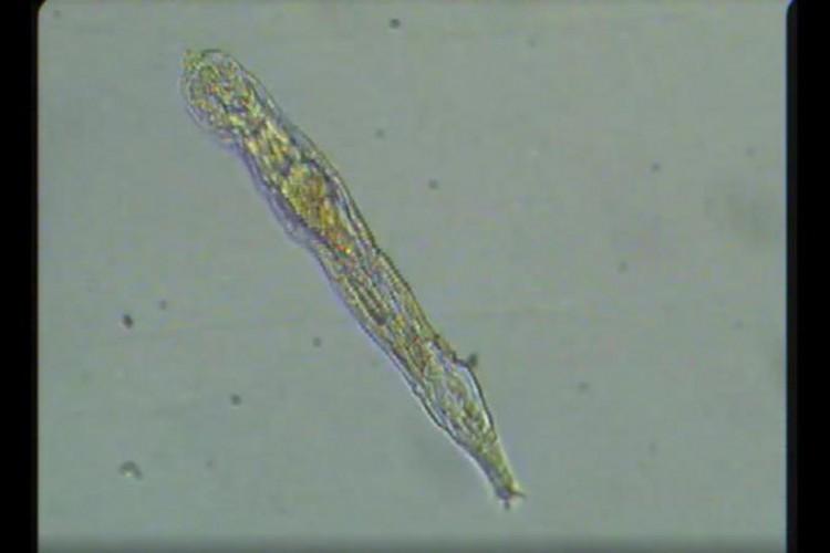 Eles já haviam identificado micróbios unicelulares capazes de feitos semelhantes.   (Foto: Reprodução/Current Biology)