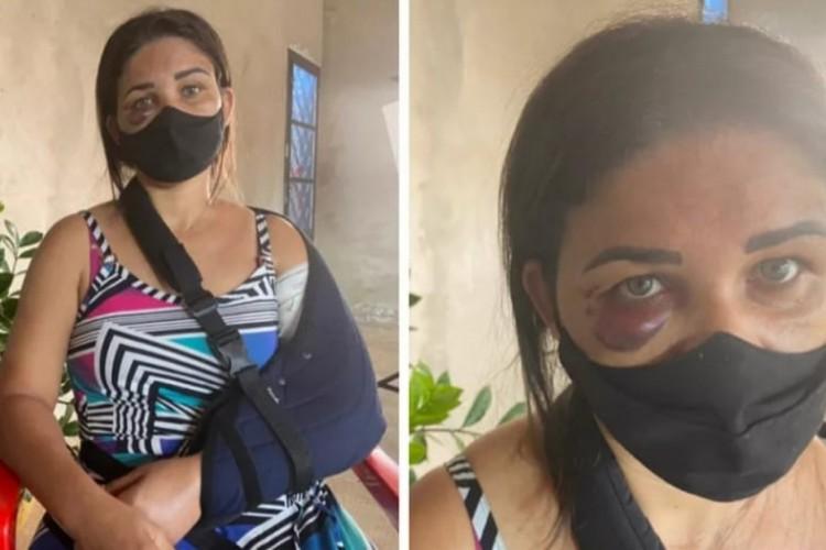 Adriana Araújo estava no trabalho quando foi agredida pelo cliente, que estava com a máscara na altura do queixo (Foto: Reprodução/TV TEM)