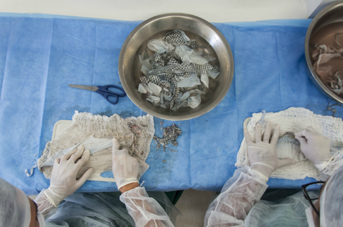A pele de tilápia usada no tratamento de queimaduras e em pacientes com síndrome de Rokitansky e câncer de vagina, passa a fazer parte de procedimento de reconstrução vaginal.