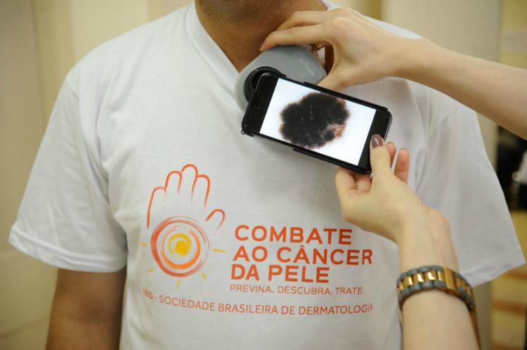Mutirão para prevenção de câncer de pele será realizado neste domingo, em Fortaleza e Juazeiro