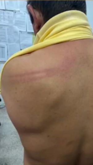 Dinho Nunes (PT) diz que foi agredido com cassetetes