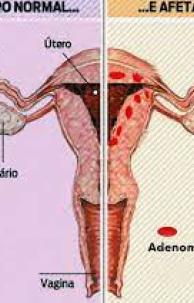 A adenomiose pode ser mais recorrente após cirurgias realizadas previamente no útero, como cesáreas.