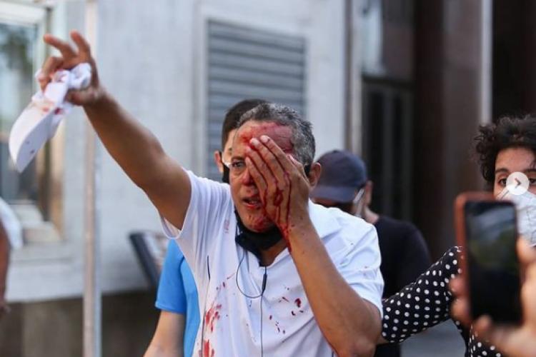Homem que não participava de protesto foi atingido no olho, em Recife  (Foto: Reprodução / Instagram @hugomunizzz)