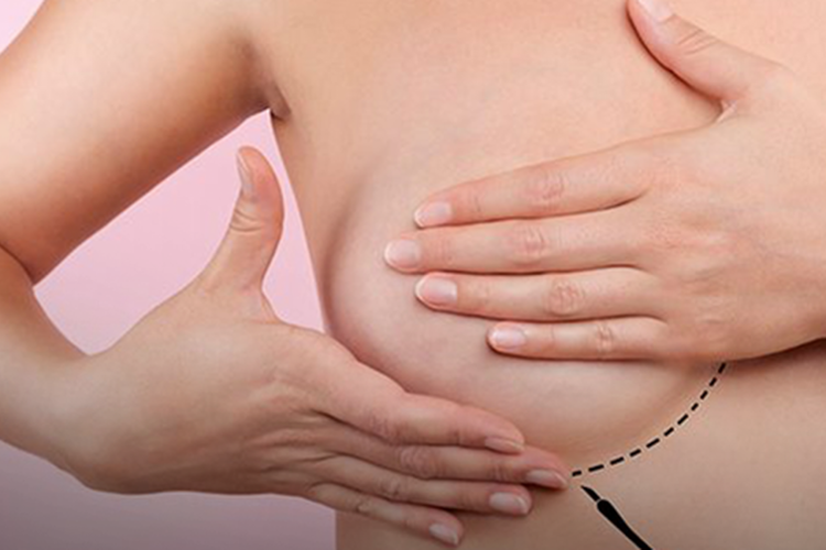 Tratamento pode fazer câncer de mama regredir seis vezes mais rápido (Foto: )