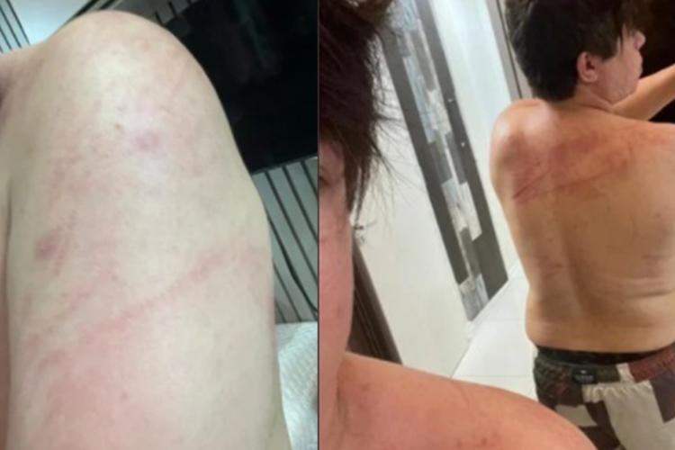 DJ Ivis Araújo aparece ferido com arranhões em fotos (Foto: REPRODUÇÃO/REDES SOCIAIS)