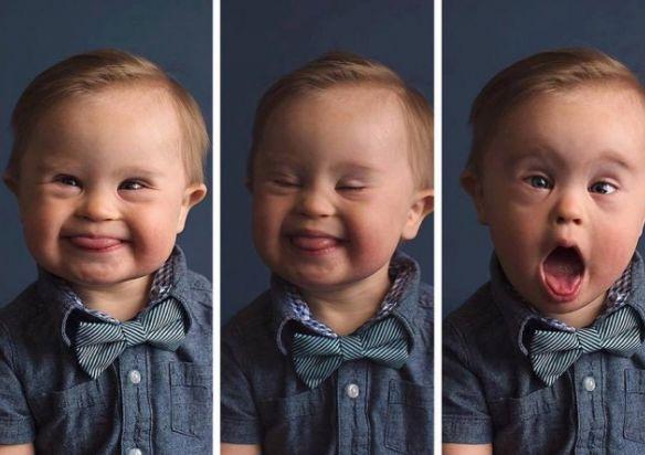 Três fotos em sequência em que um menino loiro, com características da síndrome de down, sorri, faz careta e expressão de admiração