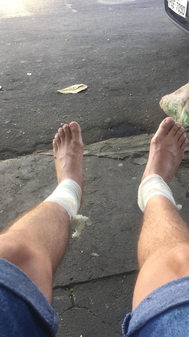 Pernas com curativo de um dos feridos no caso